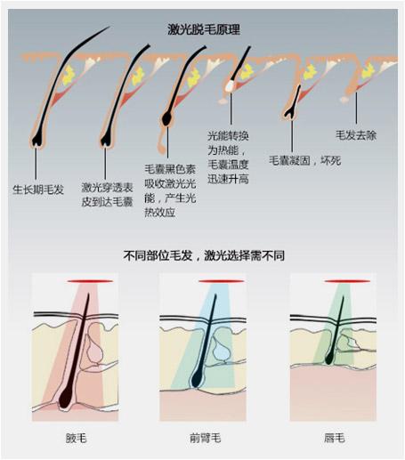 冰点激光脱毛的原理_冰点激光脱毛原理:   冰点激光脱毛,是利用冰点激光深入毛囊组织,激光可以对腋下毛囊的黑色素进行分解,并破坏毛囊细胞活性,从根源